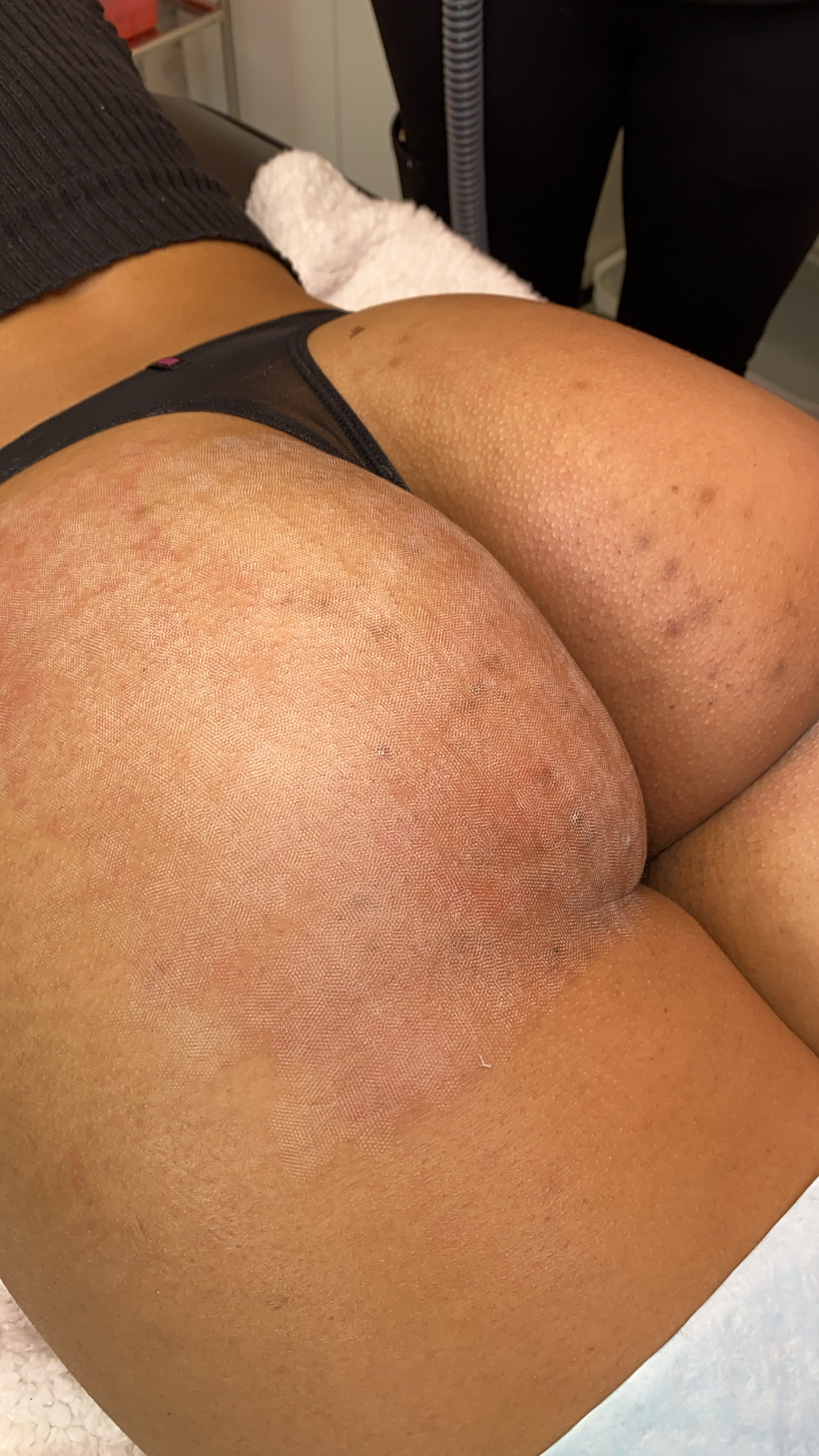 Post-Erbium Yag treatment on the buttocks to treat acne and acne scarring.